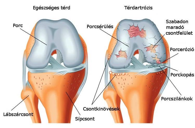 Ortopédiai kezelések   Dr. Gergely Zsolt