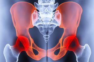 a bal ízületi kezelés artrózisa