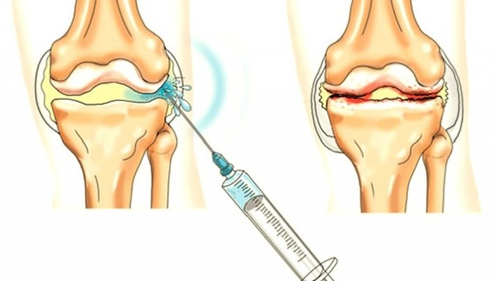 Osteoartritisz deformálódása - Öl