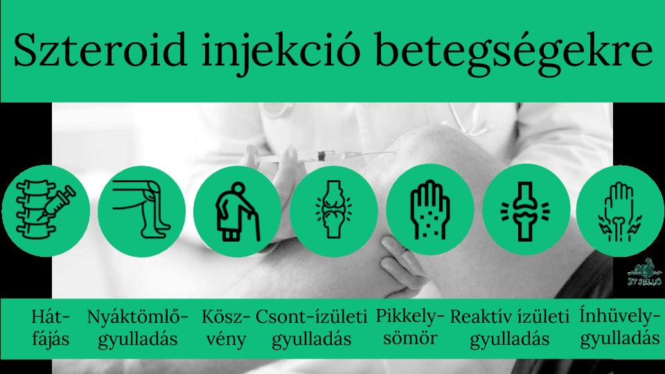injekciók fájdalomcsillapítók ízületi fájdalmak