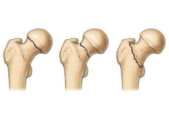 a csípőízület deformáló artrózisának tünetei)