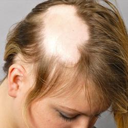 ízületi fájdalom hajhullás
