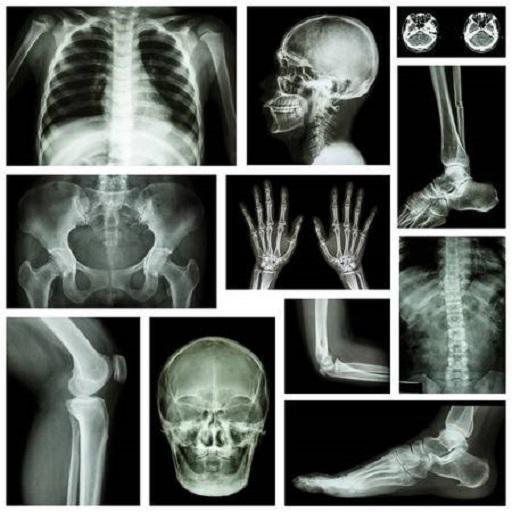 az összes ízület rheumatoid arthritis