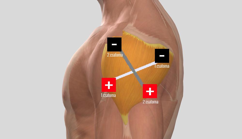 hogyan kell kezelni a váll-váll artrózist