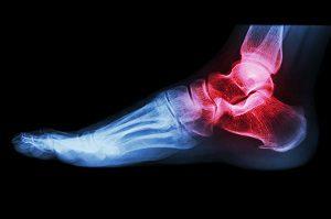 ízületi fájdalom a láb felső részén)