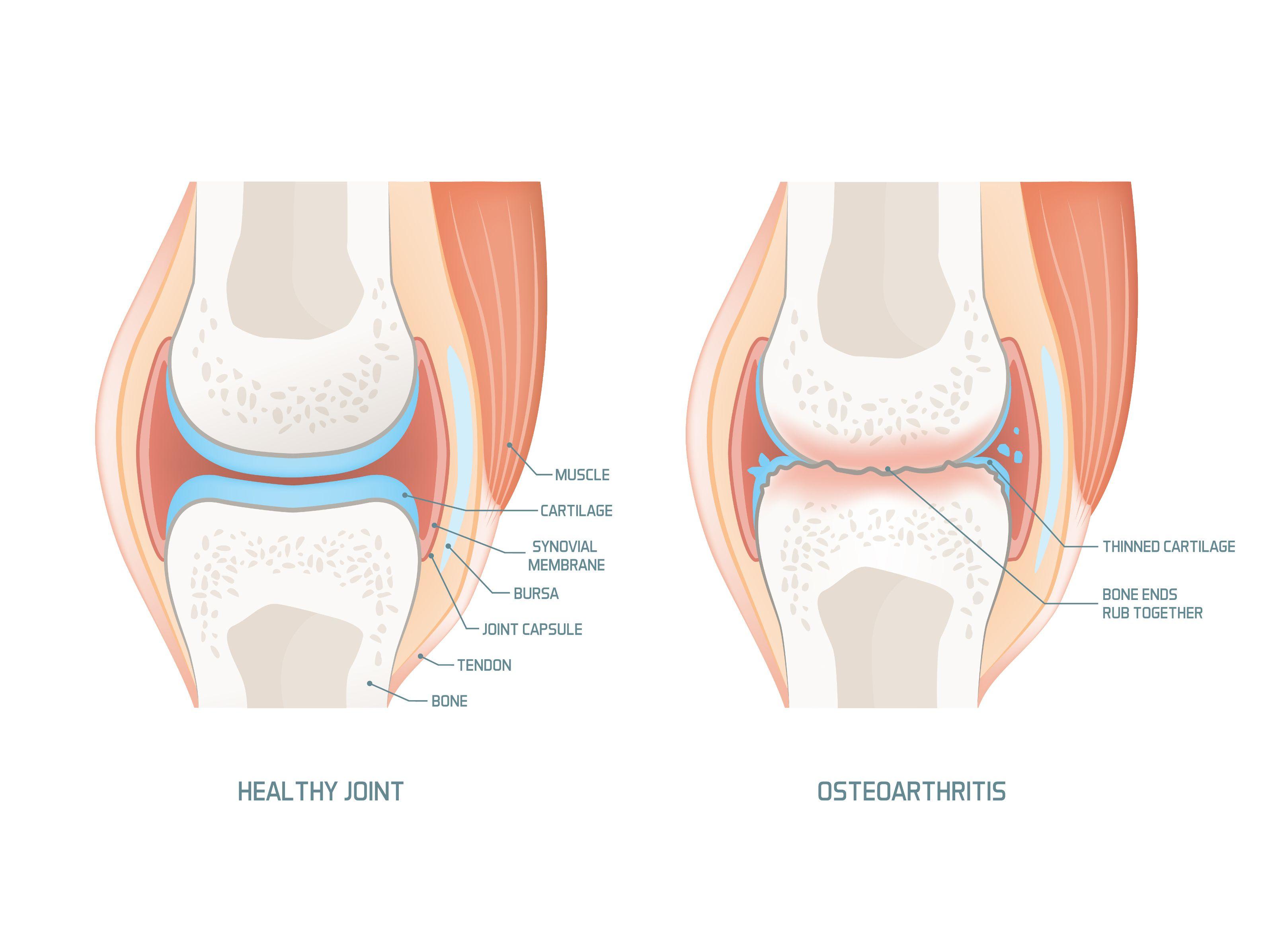 korai osteoarthritis a térd)