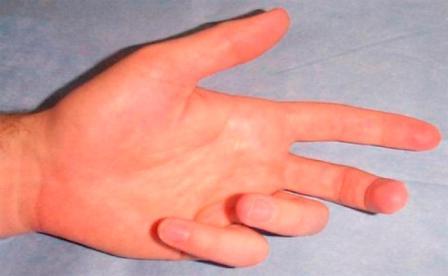 az ujjak ízületeinek diszlokációja