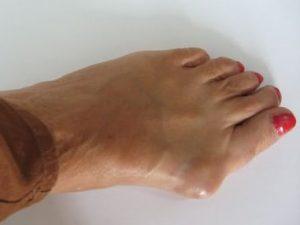 A boka arthrosisának deformálása: okai, tünetei és kezelése