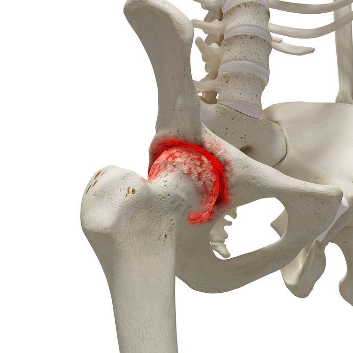 fájdalom az alsó végtagok ízületeiben járás közben