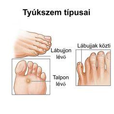 lábízület kezelése tablettákkal