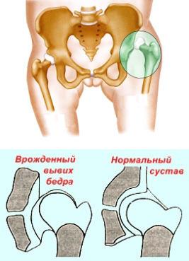 a csípőízület krónikus diszlokációjának kezelése)