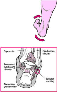 boka és láb sérülés)