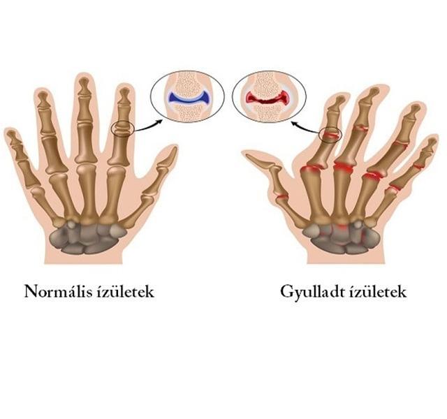 ízületi gyulladás valóban kezelni arthrosis artritisz kezelési könyv