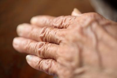kötőszöveti betegségek nőkben