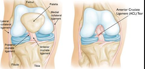 gipsz térd artrózisával