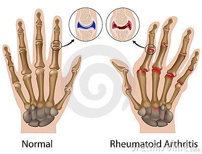 kezelhető-e éhség a rheumatoid arthritis