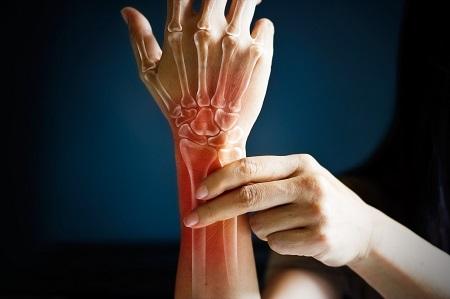 gonarthrosis betegség a térdízület 2 fokos