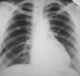 Lehet-e a vállfájdalom a tüdőrák tünete?