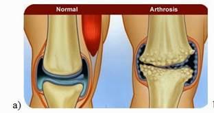 a térd 2. fokú deformáló artrózisa)