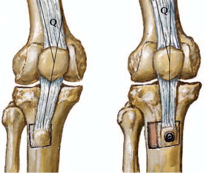 ízületi fájdalom áthelyezés csontritkulás artrózis kezelésére