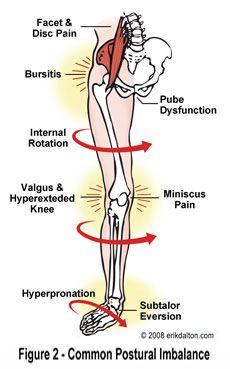 mildronát ízületi fájdalom)