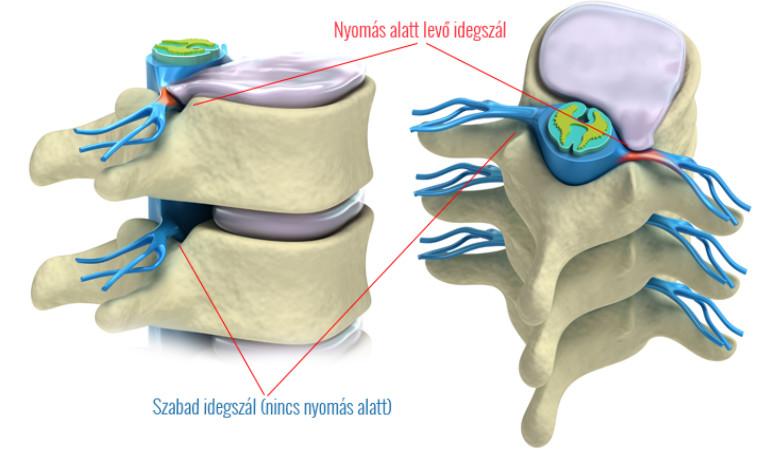 enyhíti a térdfájdalom artrózisát