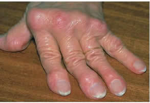 sacrococcygealis artrosis kezelése ízületi fájdalom a karról