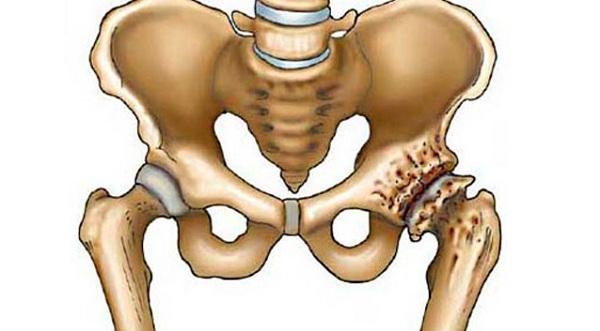 a bal térdízület deformáló artrózisa 1 fokos