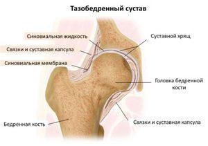 ha fájdalom jelentkezik a csípőpótlás után)