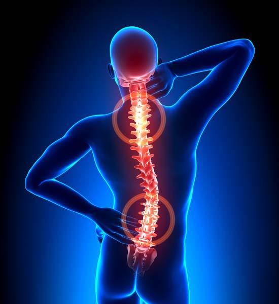 csípőízületek kezelésének szubluxálása