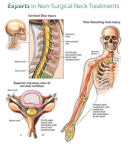 a nyaki kenőcs kezelése