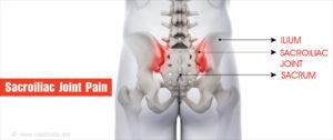 sacroiliac ízületek fájdalma)