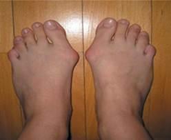 a lábujjak artrózisának kezelése