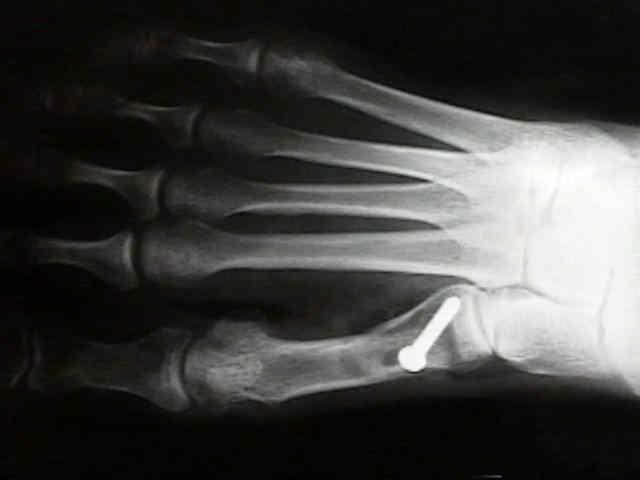 a subtalaris ízület posztraumás artrózisa