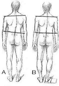 csípőmozgás kezelése)