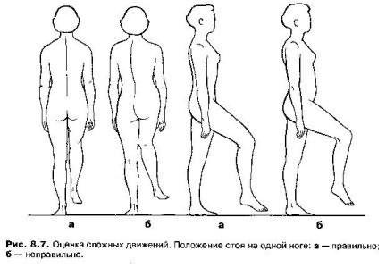 a csípőízület vertikális bursitisz kezelése