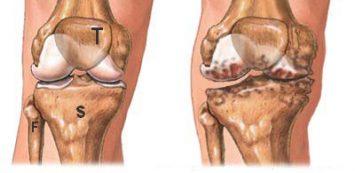 hogyan kezdődik a térd artrosis)