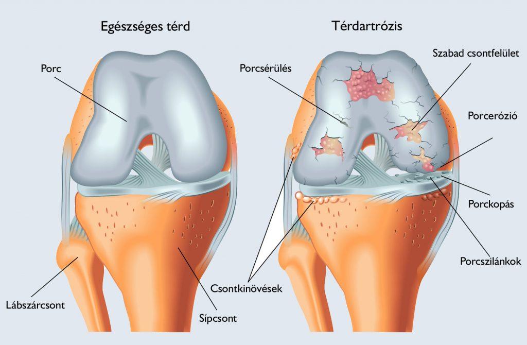 hogyan lehet gyógyítani a térdízület tüneteit