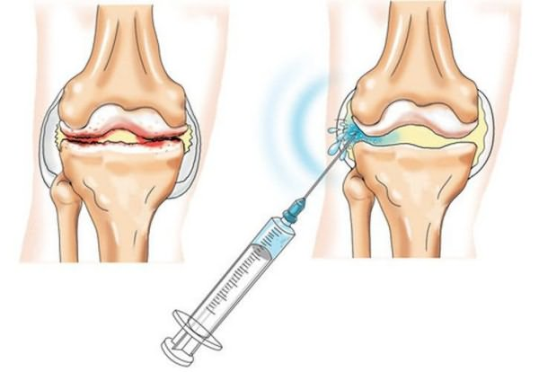artrózisos vízkezelés)