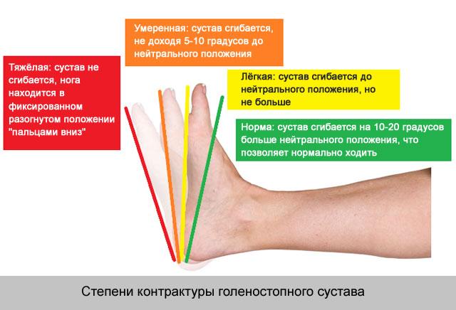 a térd oldalsó ínszalagjának plasztikus javítása