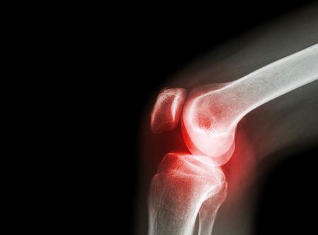 eljárás térd artrózisának kezelésére