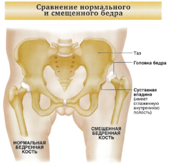gyulladásos kötőszöveti betegség a gerinc kenőcsének csontritkulása