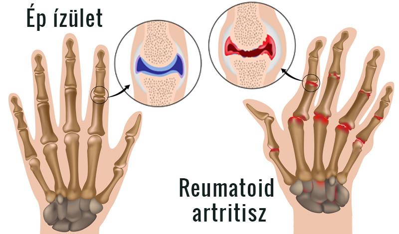 ujjak rheumatoid arthritis kezelése)