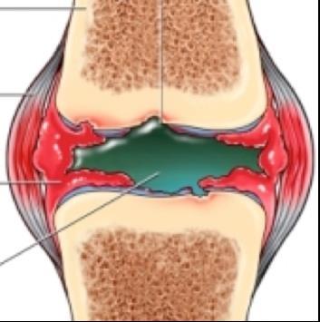 térdízületi kenőcs bursitis