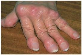ízületi gyulladás ízületi gyulladásos tünetek kezelésére utaló jelek izület gyulladásra gyógyszer