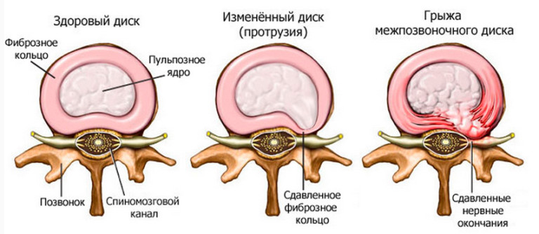 új gyógyszer az artrózis kezelésére hogyan kell kezelni a vállízület neuritisét