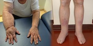 élő és halott víz artrózis kezelésére)