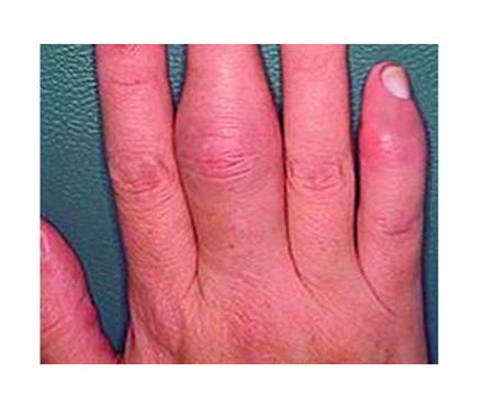 az ujjak ízületi gyulladása esetén a térdízület oldalsó ágának sérülése 1 fokkal