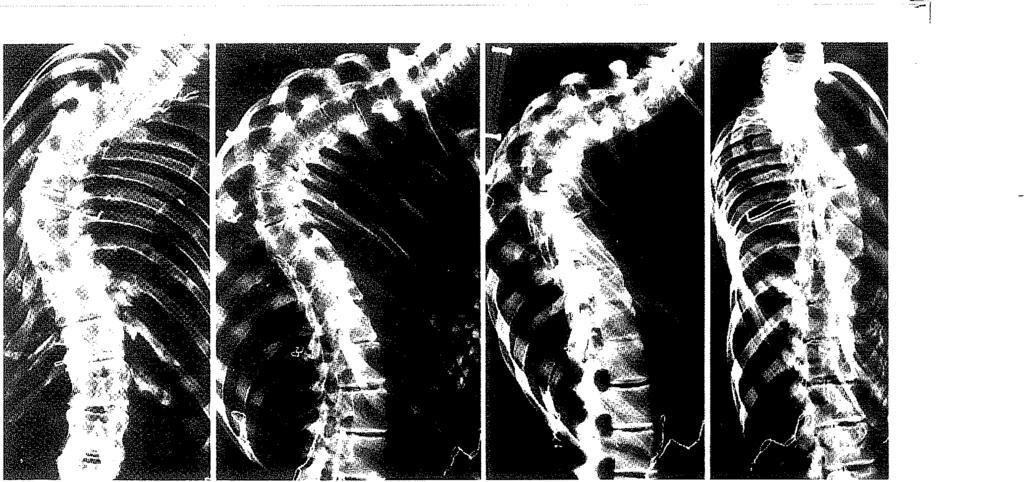a boka ízületének kompressziói fájdalom kezelésére ízületi gyulladás, mint a kezelés