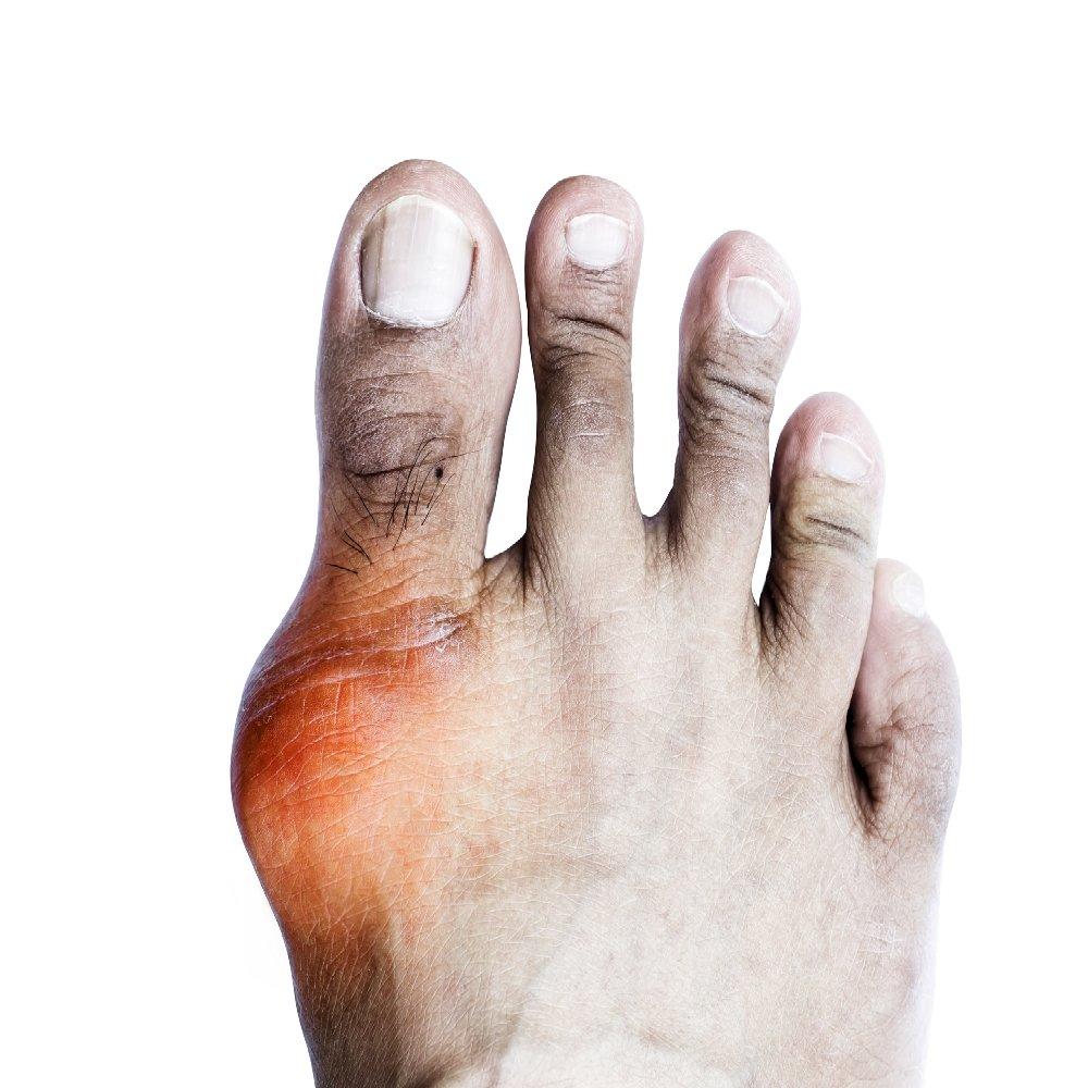 ízületi javulás artrózis)